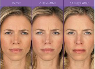 before and after pictures of using retinol